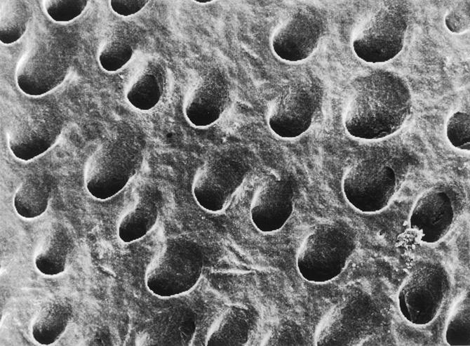 Эмаль под микроскопом